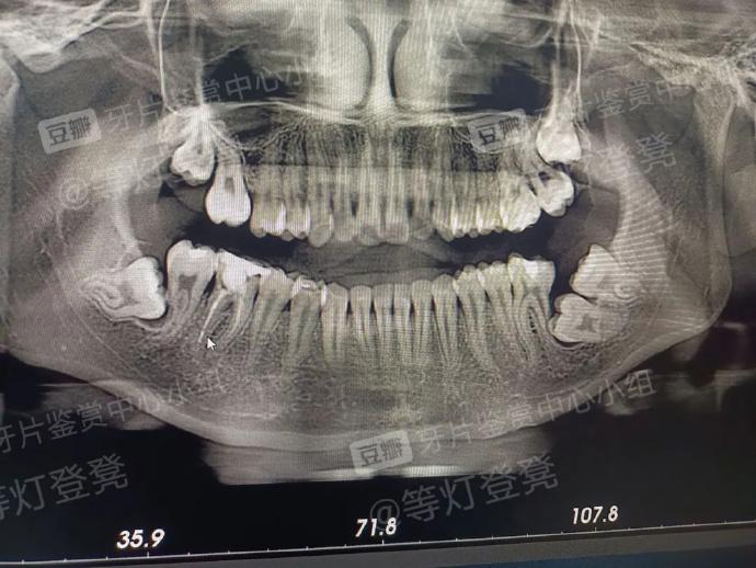 智齿得拔了啊,神奇你居然一颗大牙没长出来
